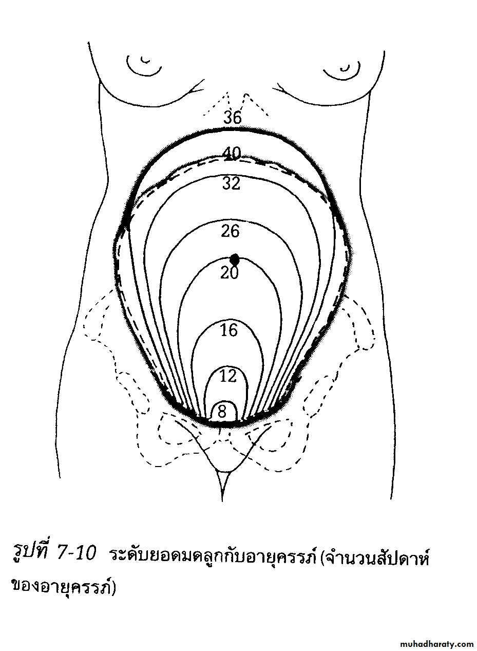dx of pregnancy docx - دكتوره سراب - Muhadharaty