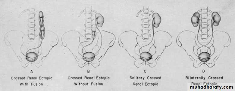 Congenital anomalies of the upper urinary tract