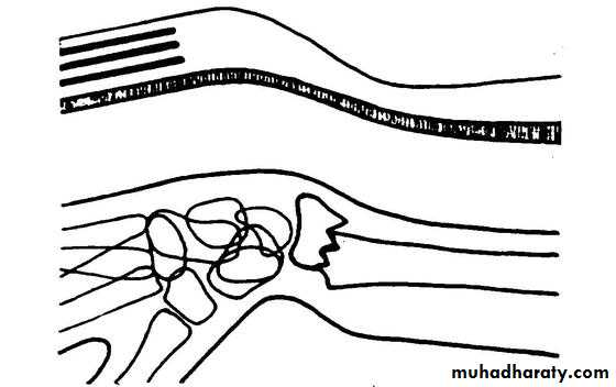Colles Fracture Pptx Muhadharaty
