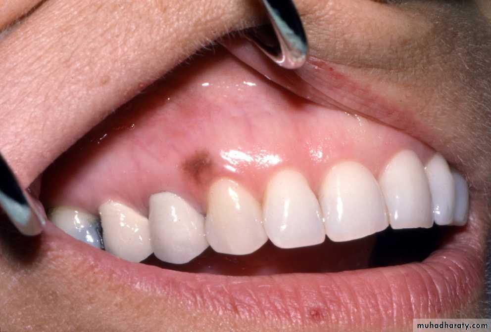 Pigmented Lesion Of Oral Mucosa Pptx -  U063a U064a U0631  U0645 U0639 U0631 U0648 U0641