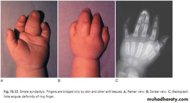 the Hand docx - د مثنى - Muhadharaty