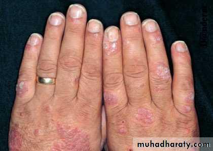 psoriasis pptx - د صبيح - Muhadharaty