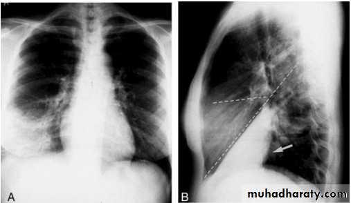 chest practice pptx د احمد muhadharaty