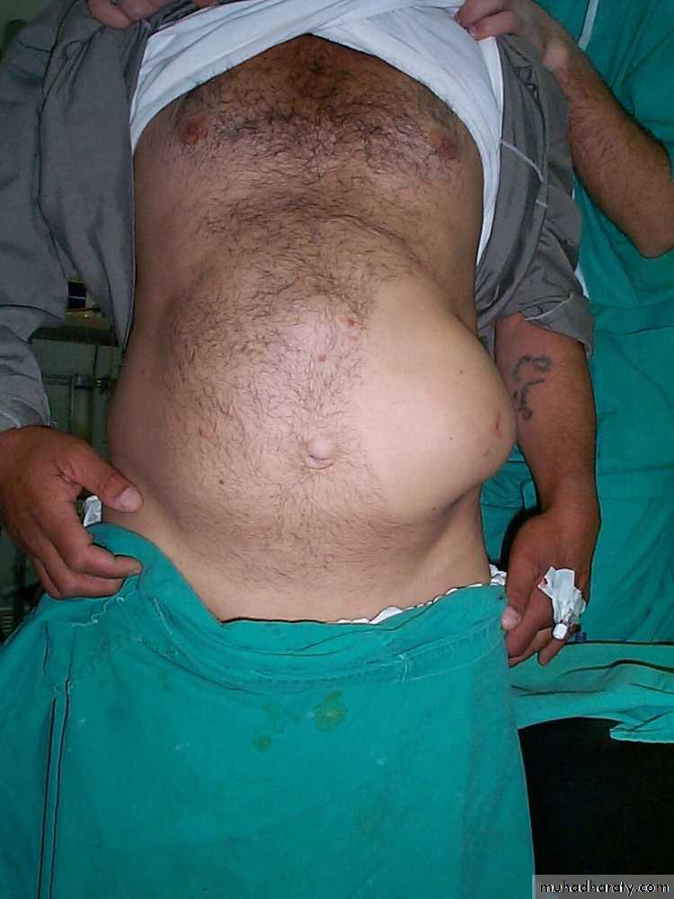 Abdominal wall Hernia docx - د ليث الحرباوي - Muhadharaty