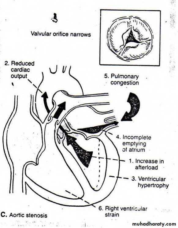 Valvular Heart Diseases Pptx