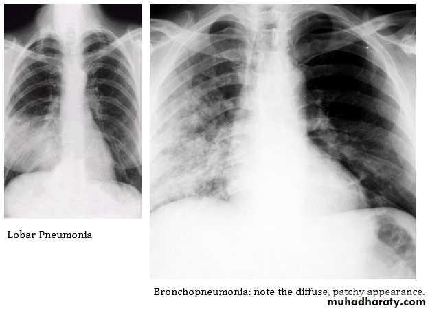 pneumonia pptx د حسن اسماعيل muhadharaty