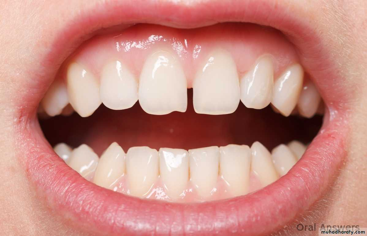 Anatomy Of The Mouth Pptx Muhadharaty