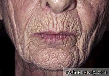 skin atrophy steroids treatment