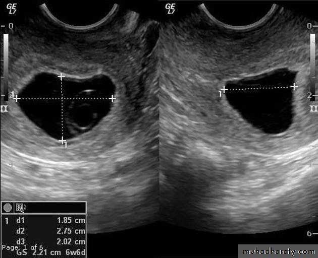 ultrasound docx - د رشا - Muhadharaty