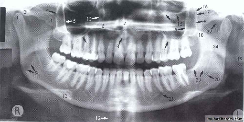 Panoramic Radiography pptx - Dr.Rand - Muhadharaty
