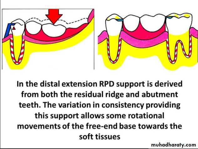 lec 2Principles and essential of RPD design