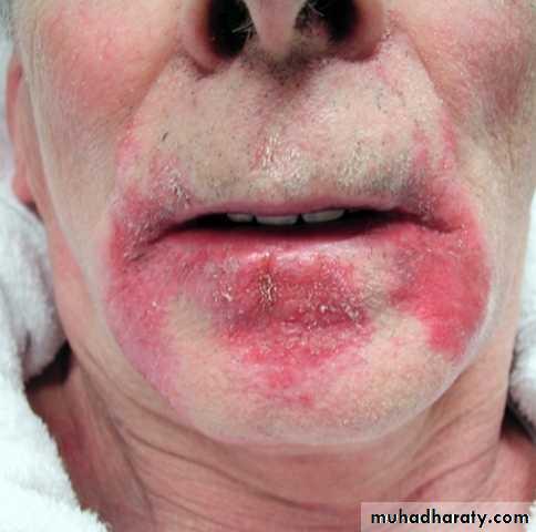 salivary gland tumor