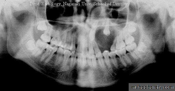 Adenomatoid Odontogenic Tumor Gross odontogenic tumors ppt...