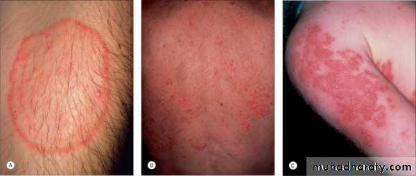 Dermatophyte infection