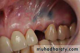 Retained foreign bodies in Oral and Maxillofacial region