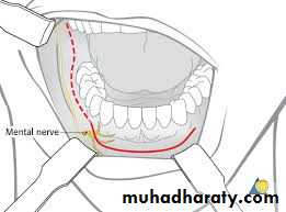تكملة oral cancer