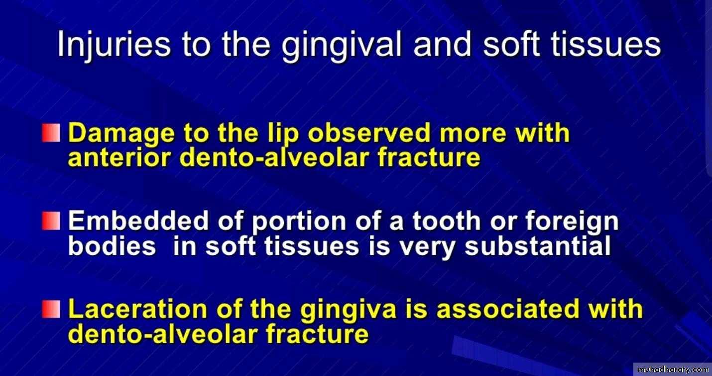 Dento alveolar fracture