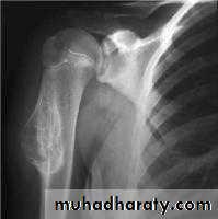 Bone tumours I