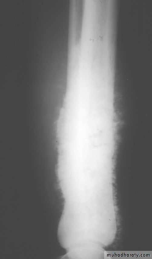 Bone tumours II