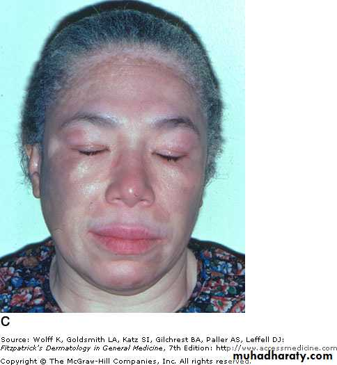 Disorders of Pigmentation