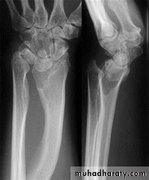 Wrist disorders