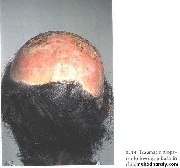 Hair Problems. Part 1