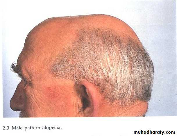 Hair Problems. Part 2