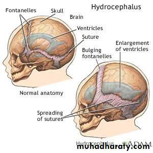 Congenital Malformations of CNS