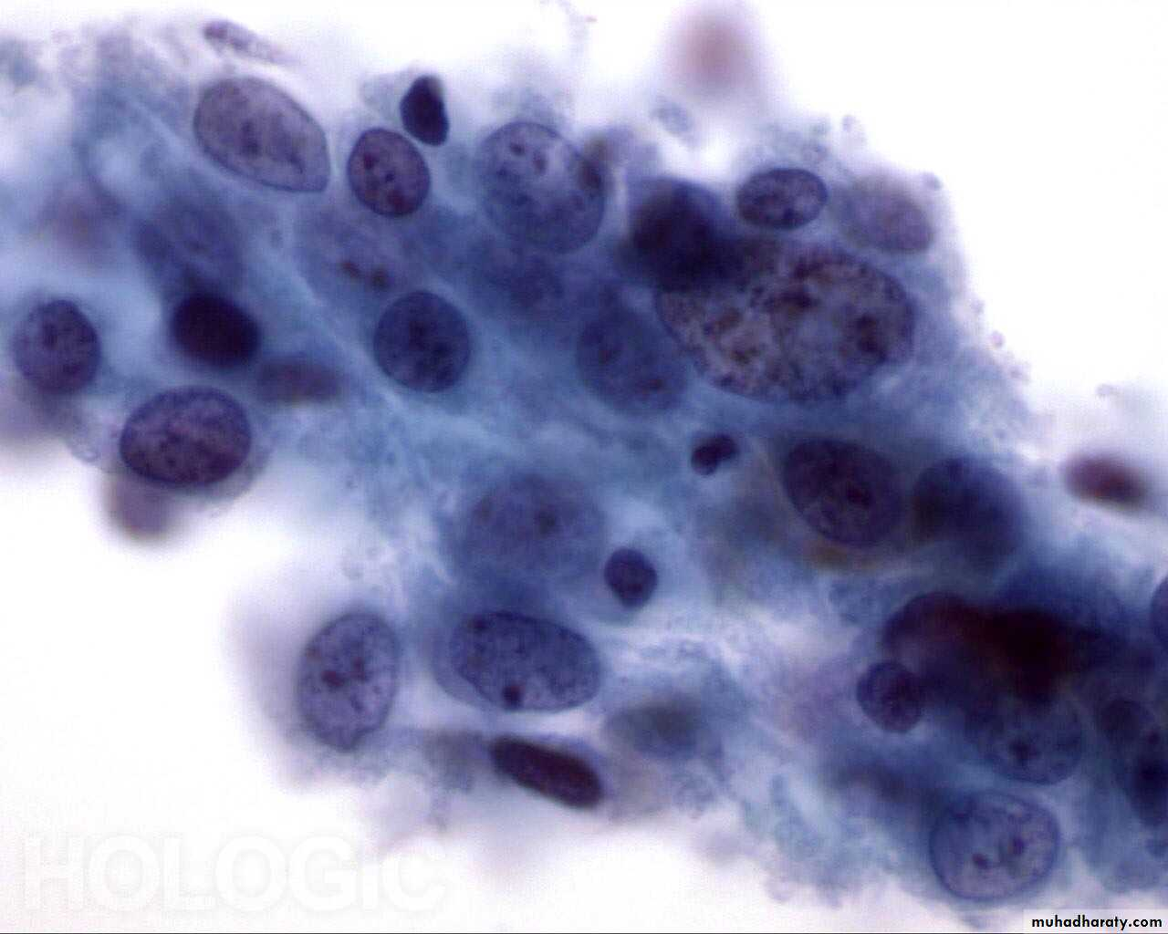 Cytopathology