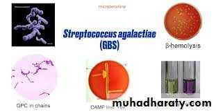 Streptococcus Part II