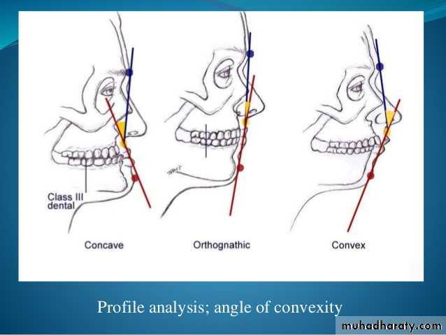 Orthognatic Surgery