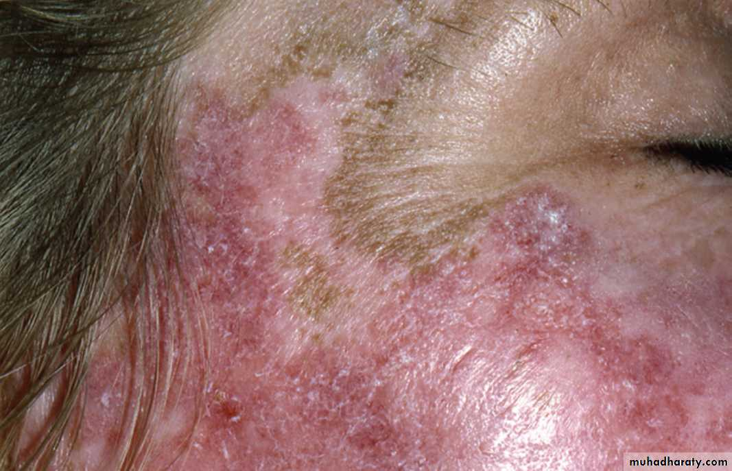 Red and white lesions