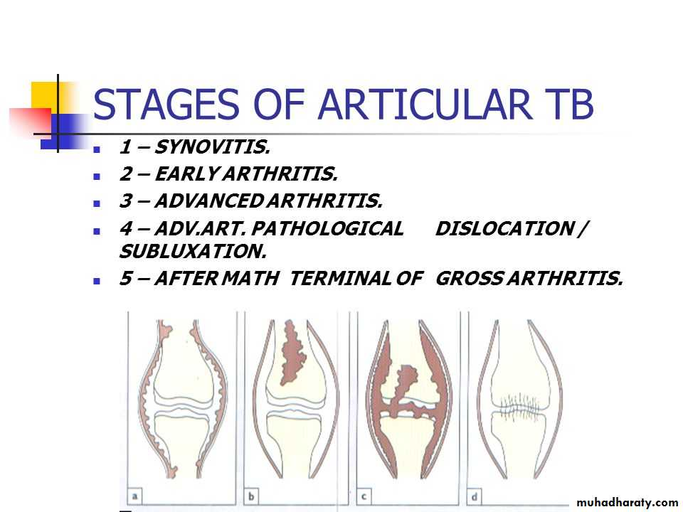 Posttraumatic & Postoperative Osteomyelitis