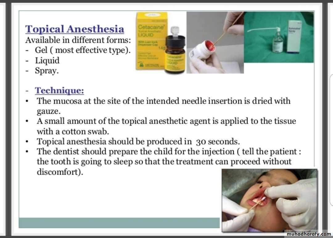 local anaesthesia